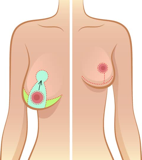 Breast uplift infogram