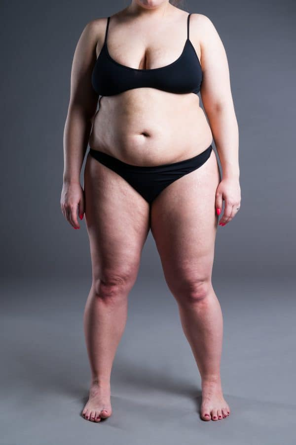 Woman standing in underwear ready to to have cosmetic surgery in manchester clinic