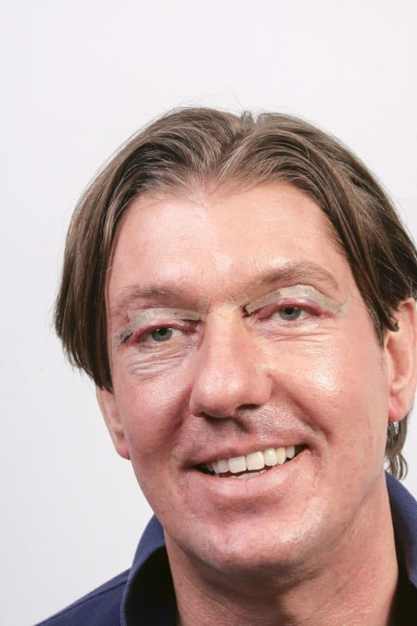 headshot of man after eyelid surgery with dressings on his eyes.