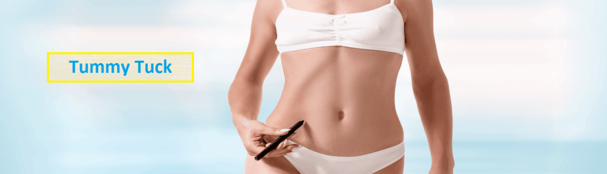 5 Things To Consider Before Getting A Tummy Tuck. Part 1 1
