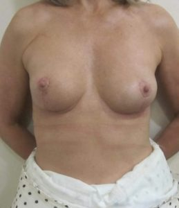 How long do breast implants last? 8