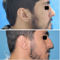 facial plastic surgery for men